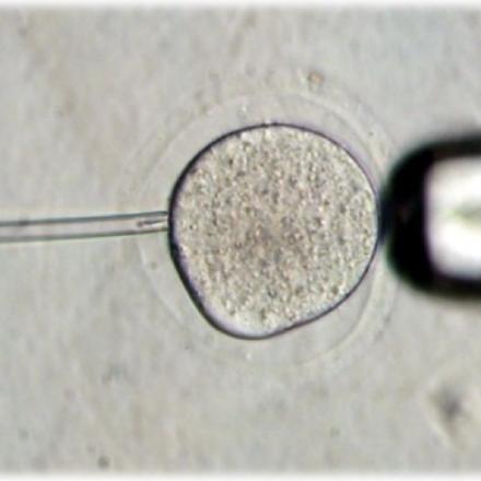 Fecundación del ovocito por inyección intracitoplasmática de un espermatozoide (ICSI)